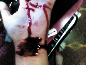 新自残照片自残女孩手臂救助再现需成瘾-自残长的女生博客图片