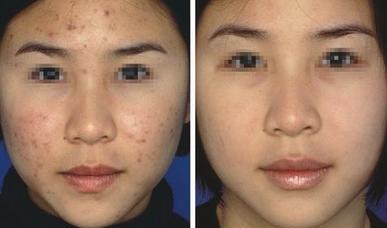 医院专家指出,形成黑头粉刺的原因有很多种,主要有以下几种:-